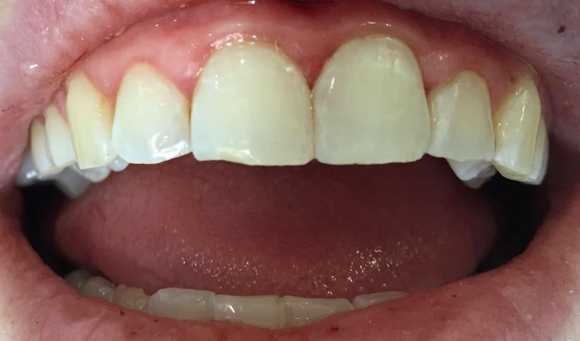 Dental before & after photos - Family Dentistry On Montford - Charlotte, NC